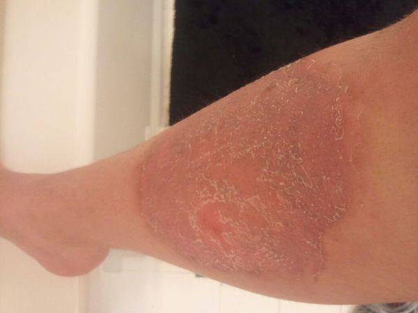 Leg after scrub